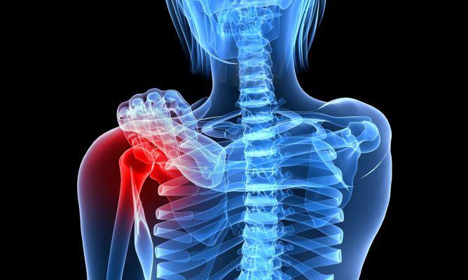 osteoporosis-668x400x80xX