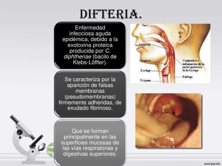 difteria-3-728