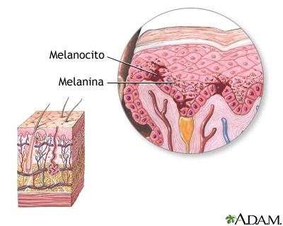 melani2
